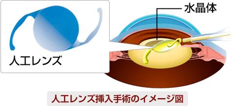 人工レンズ挿入手術イメージ